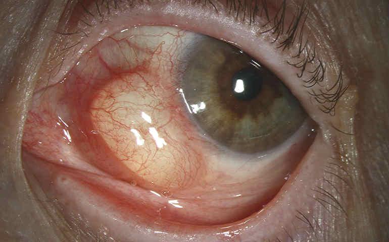 киста конъюнктивы глаза операция