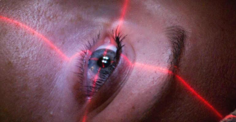 Лазерное лечение глаукомы по доступным ценам