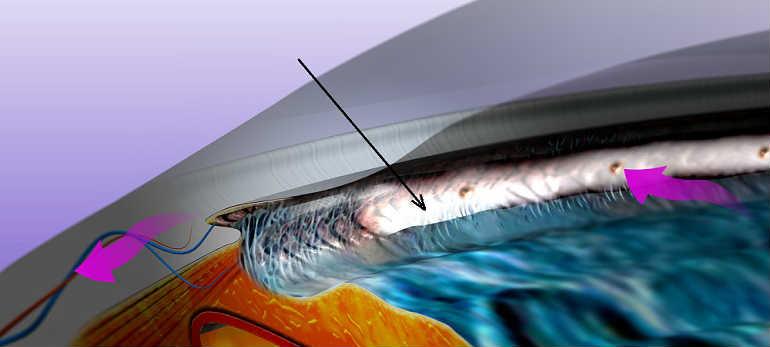 Операции при глаукоме - лазерные и ножевые. Обзор и цена лечения.