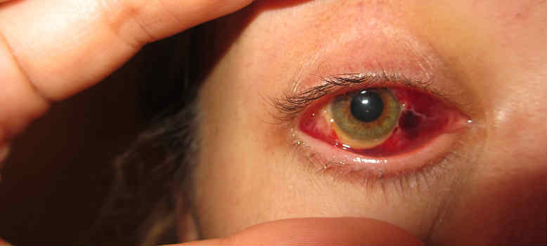 Отслойка сетчатки глаза. Лечение в Наро-Фоминске